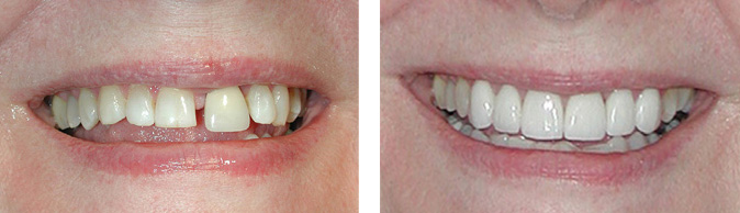 New Smile Before and After